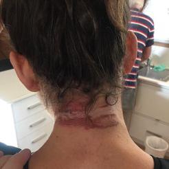 it hurt as bad as it looks!